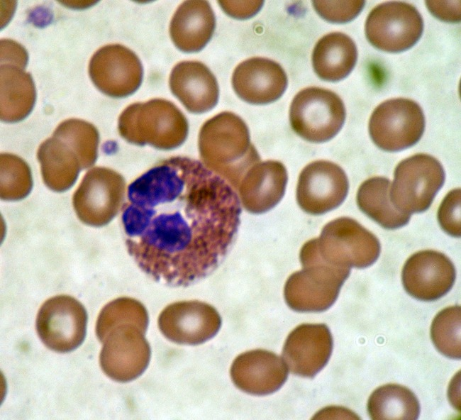 1200px-Eosinophil_blood_smear